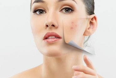 How to get rid of acne marks?